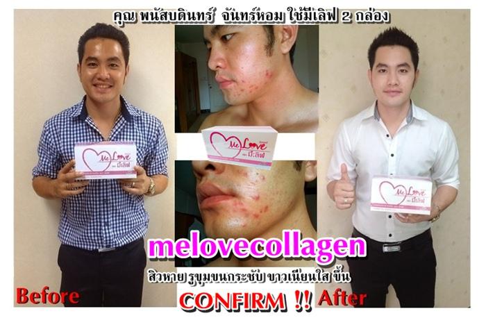 มีเลิฟคอลลาเจน, melove collagen